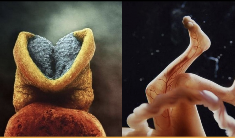 Incredible Photographs Showing Every Stage Of How A Child Is Born