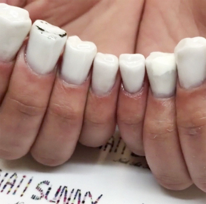 Teeth-Nails Exist, And If You Think They Can't Get Any Worse, We Have More To It