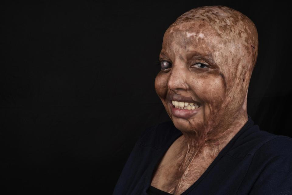 acid-attack survivor rani shares her heartbreaking picture after ten years