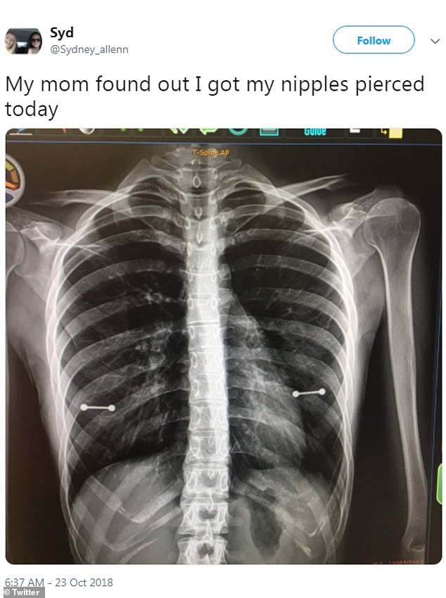 Mom Found Out About The Secret Piercing Of Her Young Daughter In A X-ray