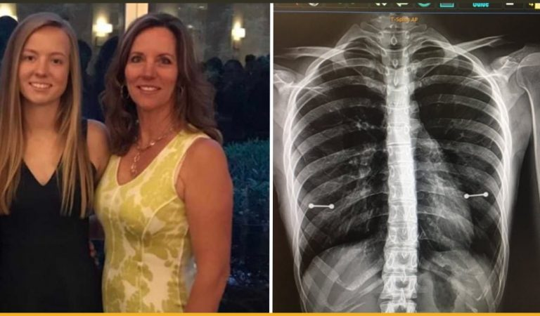 Mom Accidentally Found Out About The Secret Piercing Of Her Young Daughter In A X-ray