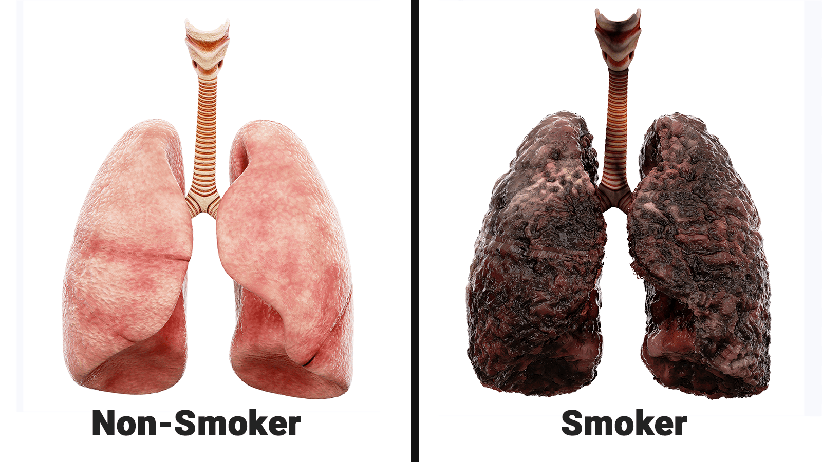 This Video Shows What Smoking Does To Your Lungs