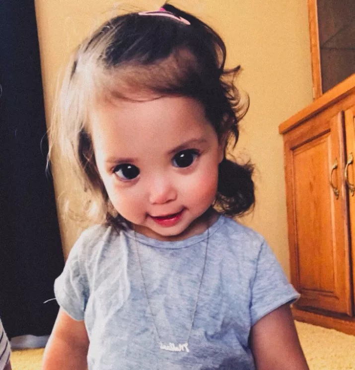 A Rare Genetic Condition Made This Little Girl's Eyes Look Big And Gorgeous