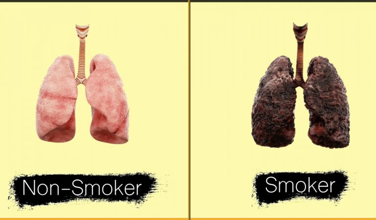 Here's A Video That Shows The Reality Of What Smoking Does To Your Lungs