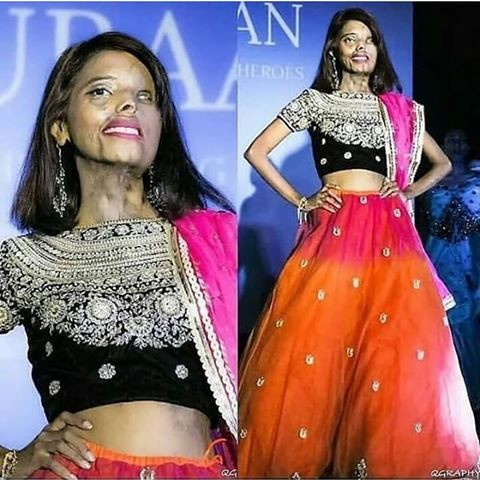 Acid Attack Survivor Is Now A Fashion Icon