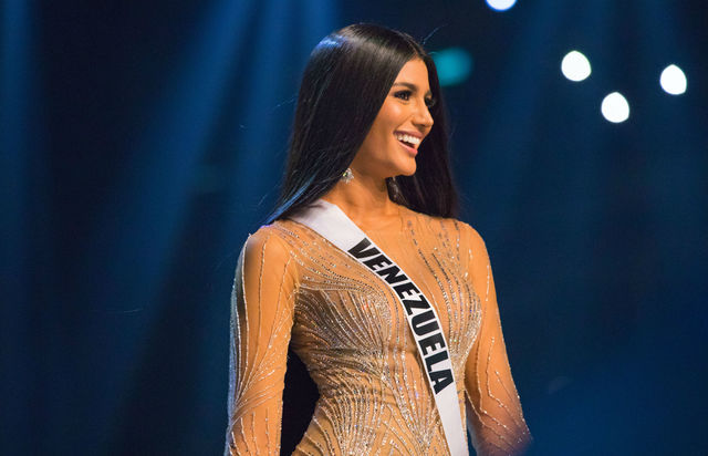 Before & After Surgery Photos Of Miss Venezuela Revealed By Her Surgeon