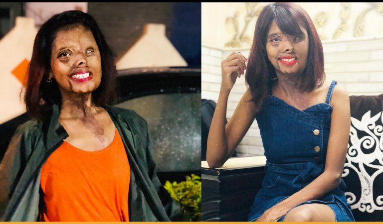 Meet An Acid Attack Survivor Who Is Now A Fashion Icon