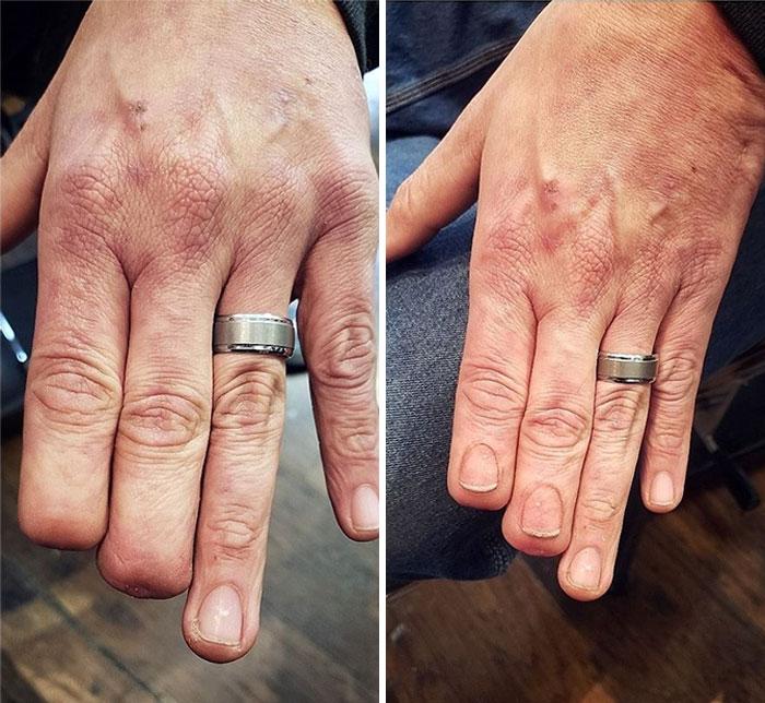 tattoo artist, scars and birthmarks
