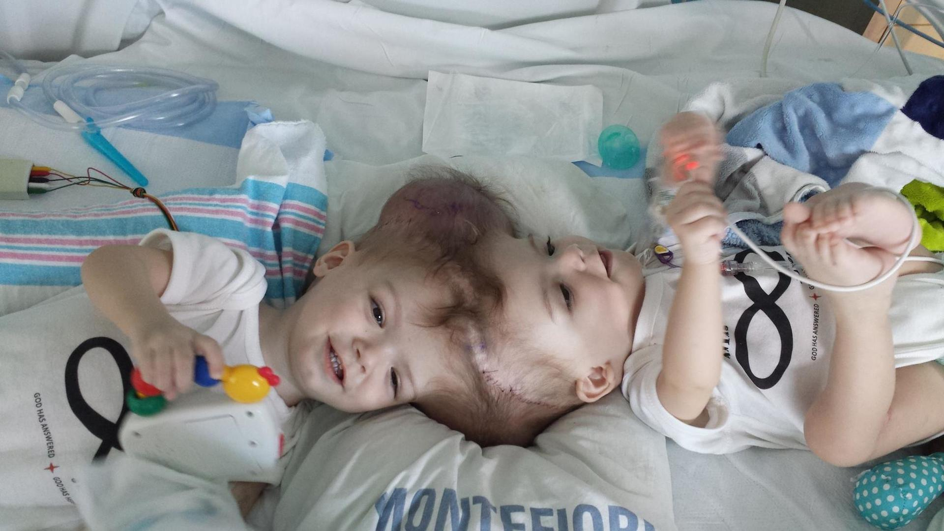 Twins Born With Conjoined Heads Finally Got Separated After 27 Hours Of Operation