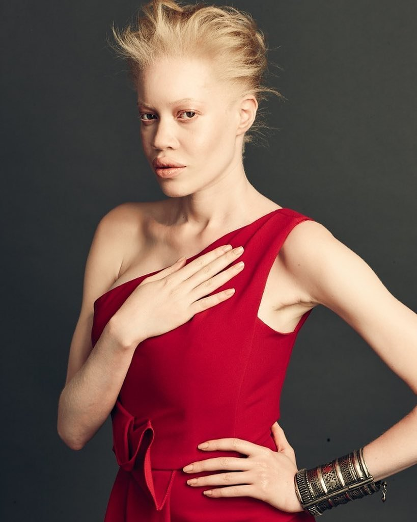 Meet The Albino African American Model Who Proves That Beauty Isn't Black And White