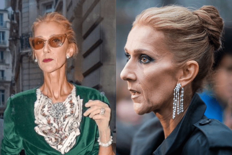 Celine Dion gets a drastic weight loss