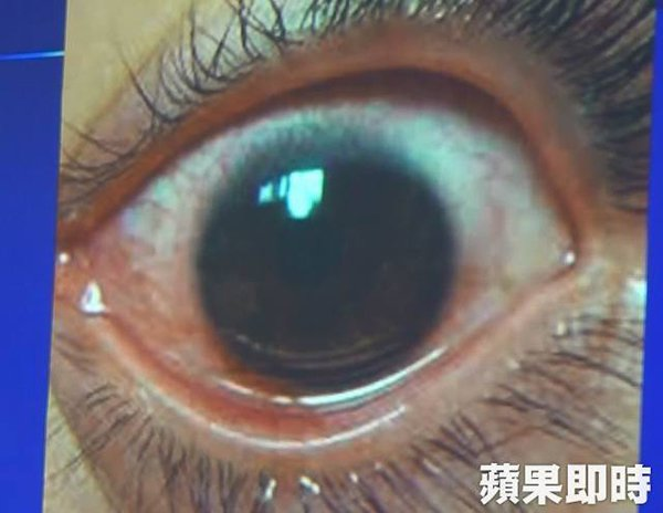 Woman Suffers From 500 Holes On Cornea After Always Using Phone On Max Brightness