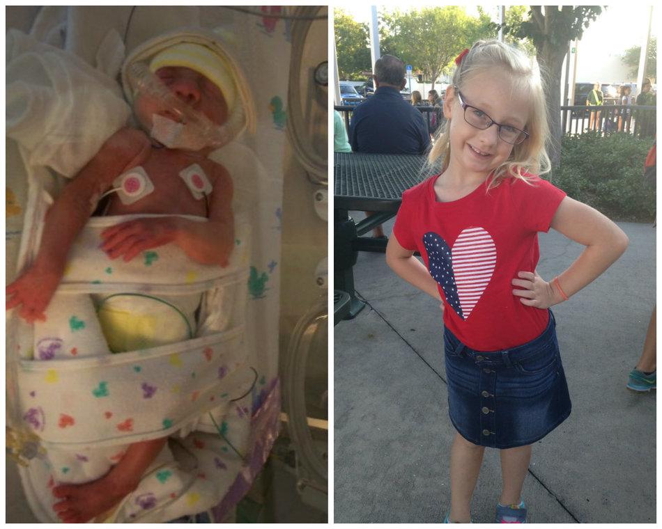 Smiling Photos Of Premature Babies