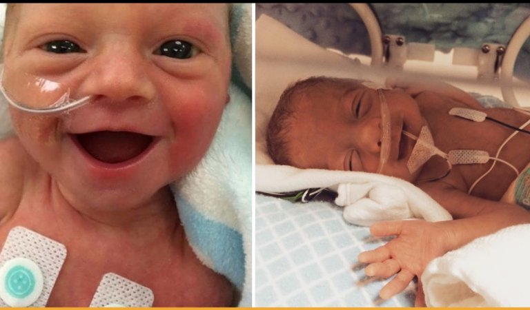 These Smiling Photos Of Premature Babies Is Going To Be The Highlight Of Your Day