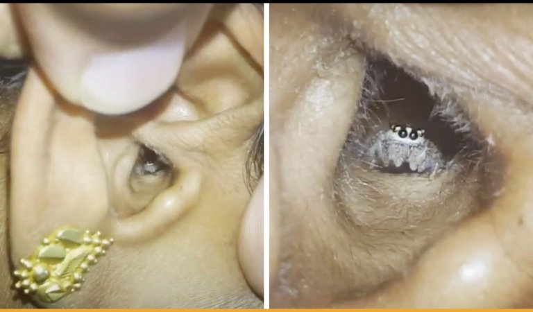 Woman Found That A Spider Living In Her Ear Is The Reason Behind Her Headaches