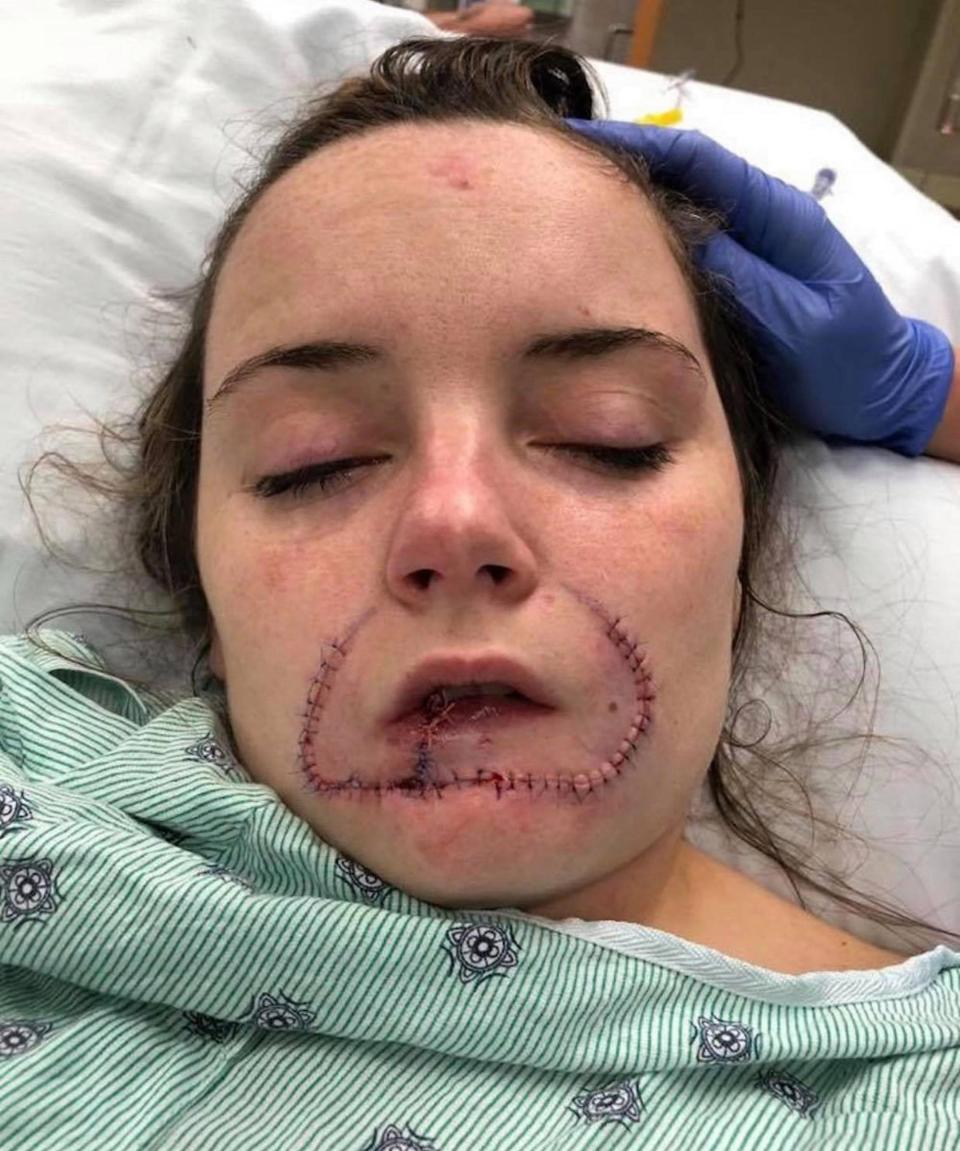This girl's Ex Boyfriend Tore Her Lips Off Because He Wanted To Leave His Mark On Her For Her Next Boyfriend