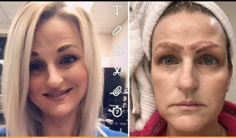 Woman Got Dumped After Botched Treatment Left Her With Four Eyebrows