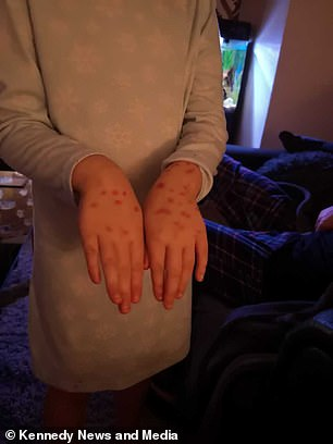 schoolgirl faked chickenpox to avoid school but it turned to be a permanent marker she used to draw spots