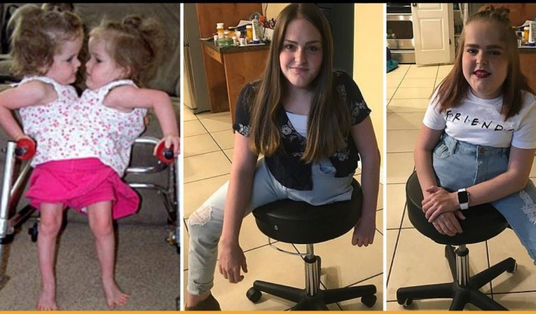 Conjoined Twins Are Separated After Surgery That Leaves Them With One Leg Each