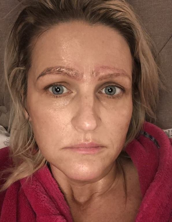 Woman Left With Four Eyebrows After Botched Treatment; Later Got Dumped by boyfriend