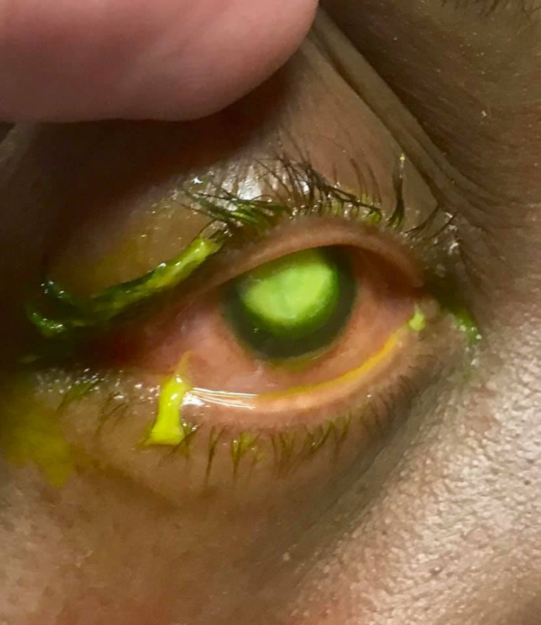 Woman's Cornea Eaten Away By Bacteria After Sleeping In Contact Lenses