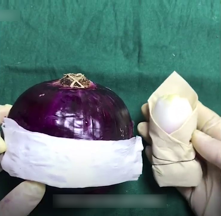 Onion Used To Demonstrate C- Section Surgery And People Are Respecting Those Women Who Went Through This Even More