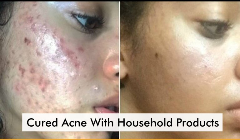 This Model Completely Cured Acne With The Help Of Household Products