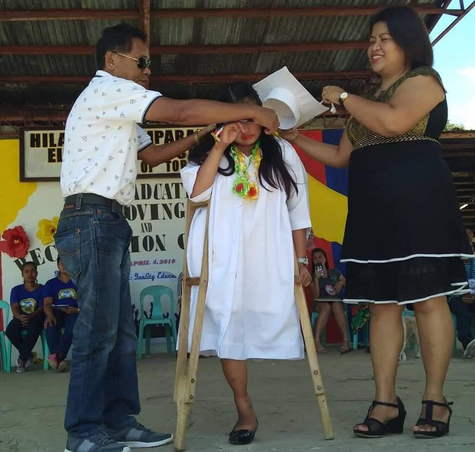Girl With One Leg In Philippines Completed Her School By Walking, Becomes An Inspiration For Many