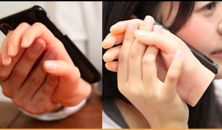 You Will Never Be Lonely With This Japanese Severed Hand iPhone Case