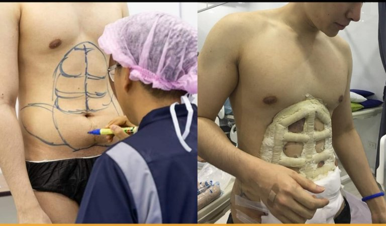 Hospital Offers Instant Six-Pack Abs With The Help Of Surgery!