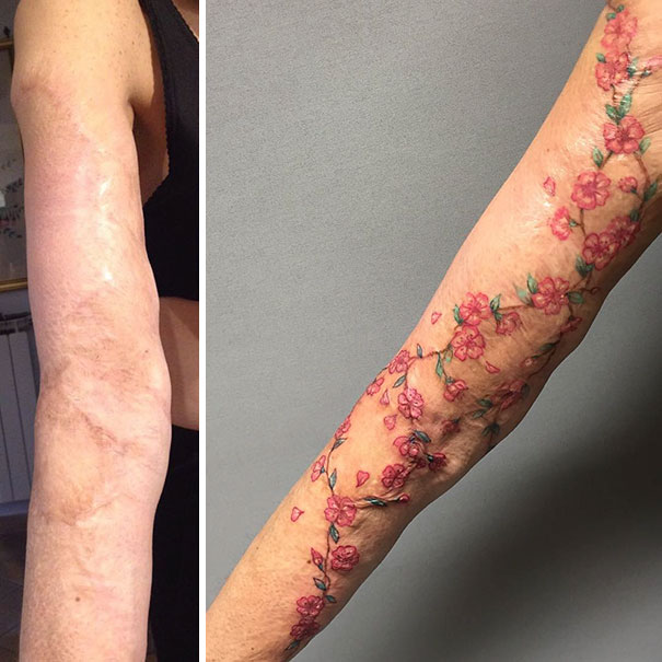 Tattoos Cover Up Scars