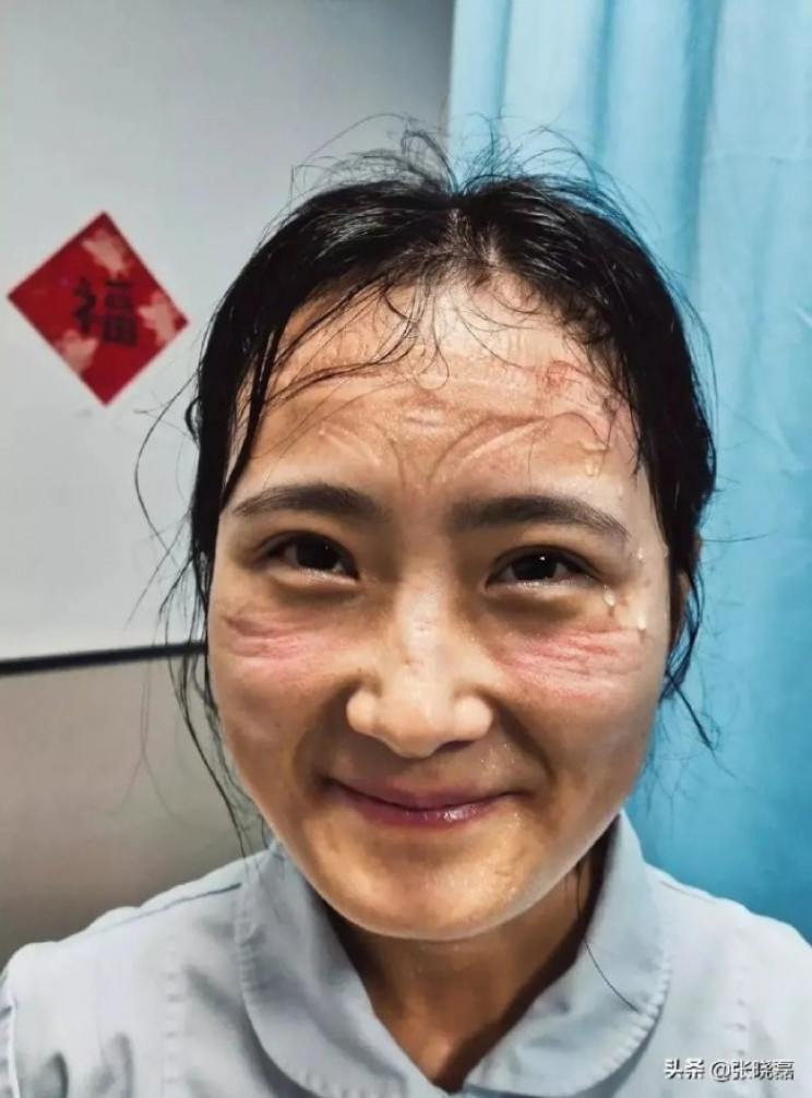 See The Faces Of Doctors Who Were Treating Coronavirus Affected Patients For Hours