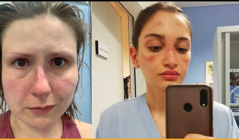 Doctors and Nurses Begs People To Stay Home While Sharing Bruised Faces Pictures