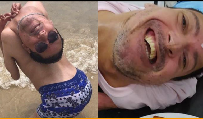 Brazilian Man With head Upside Down wasn't expected to live first 24 hours