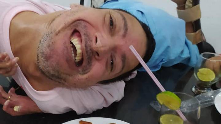 "Brazilian man with his head ""upside-down"" wasn't expected to live first 24 hours"